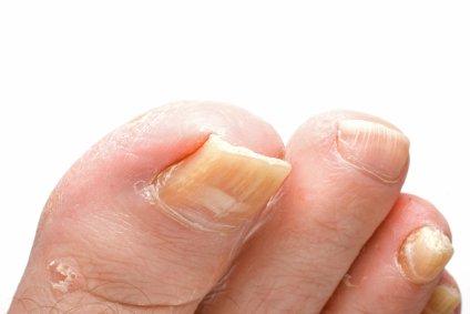 Gribok der Nägel die Behandlung von der Essenz